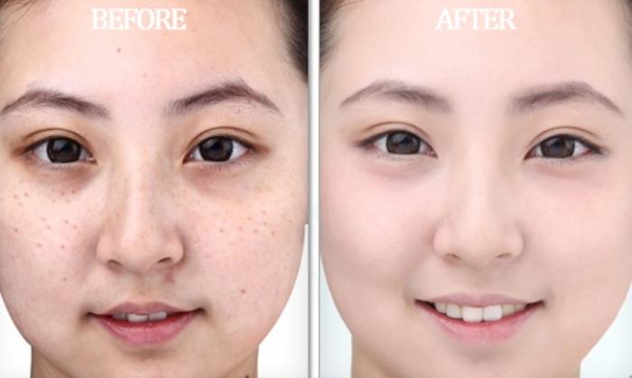 Trước và sau khi dùng thuốc trắng da